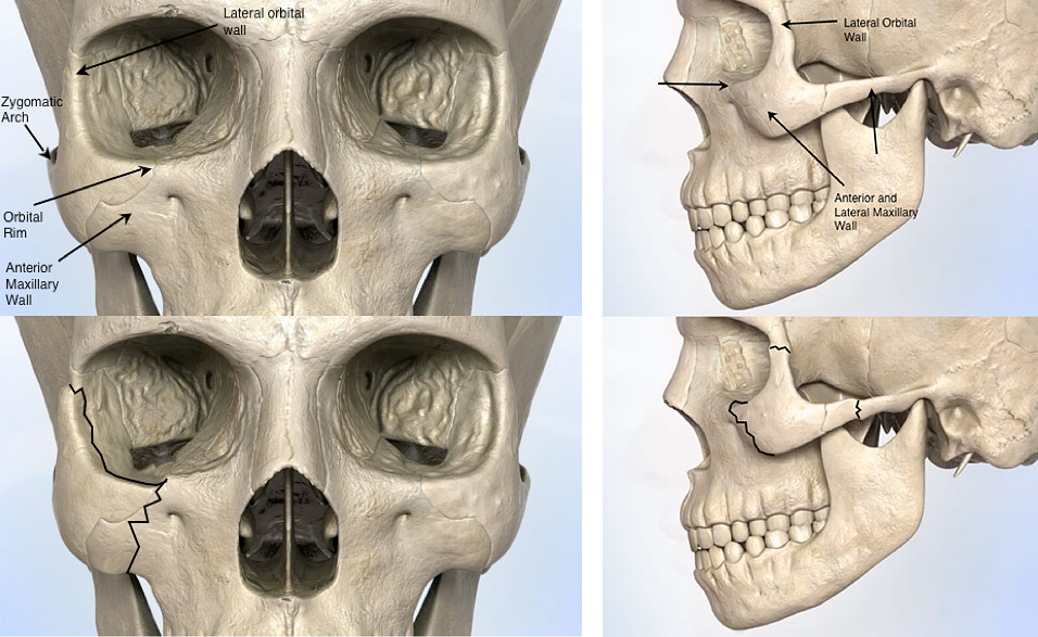 Cheek Fracture Facial Trauma