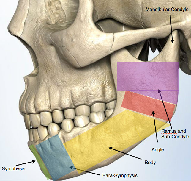 Disloacted jaw and multiple facial fractures