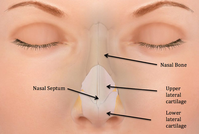 Nasal fracture facial trauma figure 1 schematic of the external nose the external nose is made up of a pair of nasal bones and lower and lateral cartilages ccuart Image collections