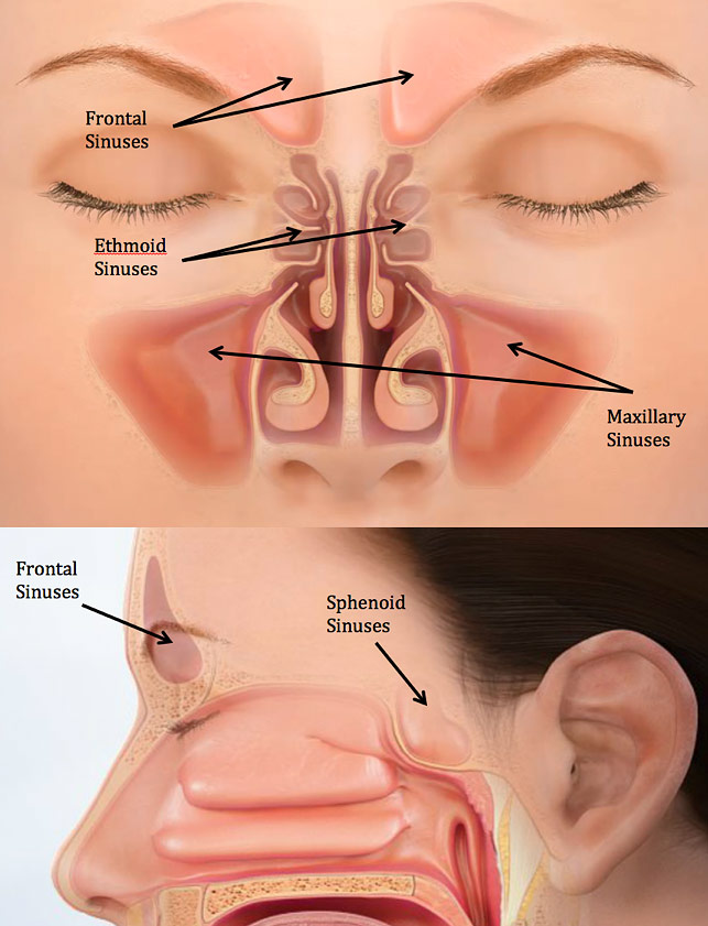sinus fracture - facial trauma, Human Body
